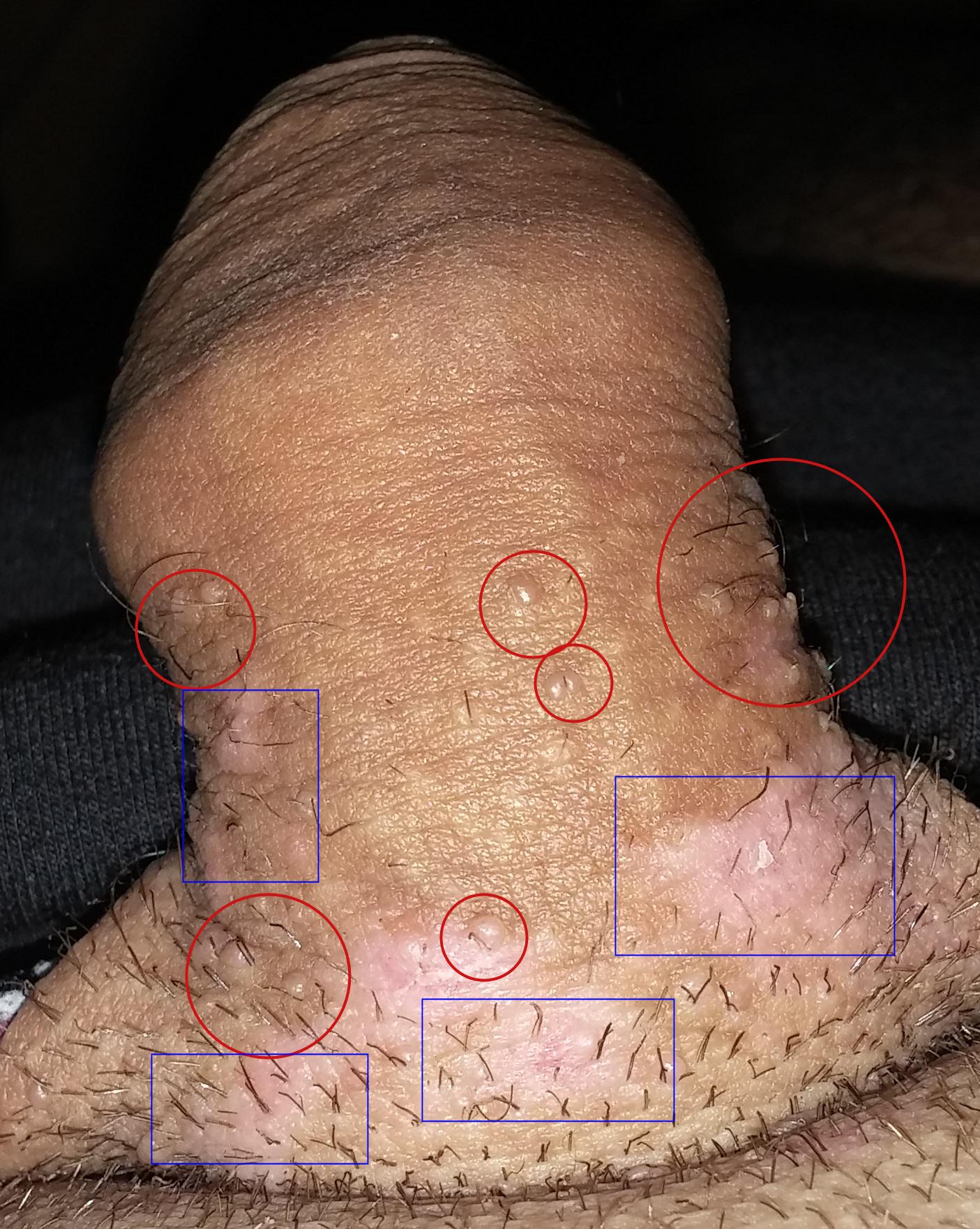 Papillomavirus symptomes chez l homme, Papillomavirus humain symptomes chez l homme