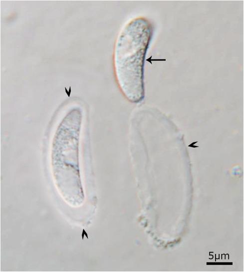 Ce sunt parazitii intestinali?