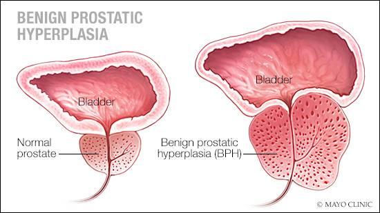 prostate cancer benign hypertrophy padezi vo srpski jazik