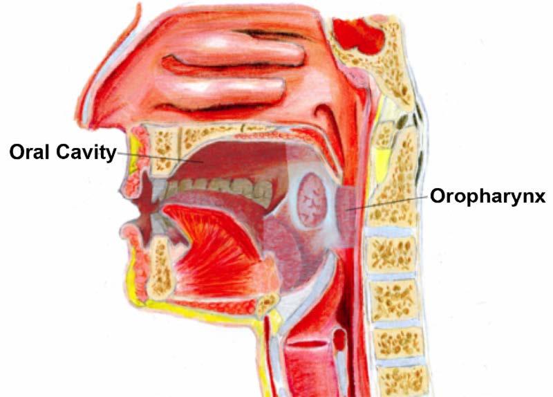 throat cancer from human papillomavirus