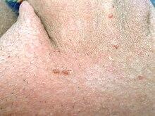 hpv viren behandlung bei mannern oxiuros sintomas ninos