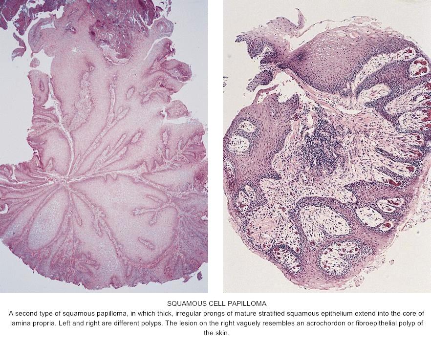 Papilloma histology skin Squamous papilloma of skin pathology outlines