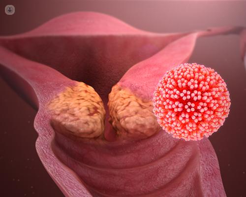 human papillomaviruses( hpvs are associated with dimensiunea și forma largă a benzii