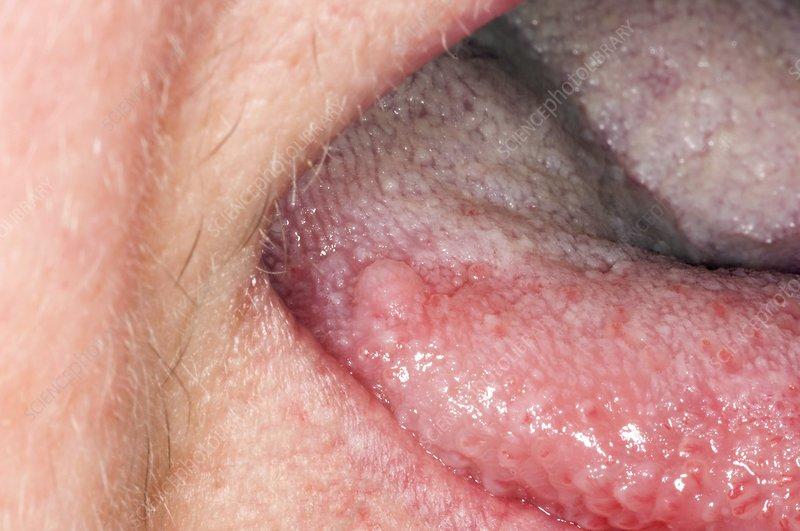 papilloma on the tongue vaccin papillomavirus adulte prix