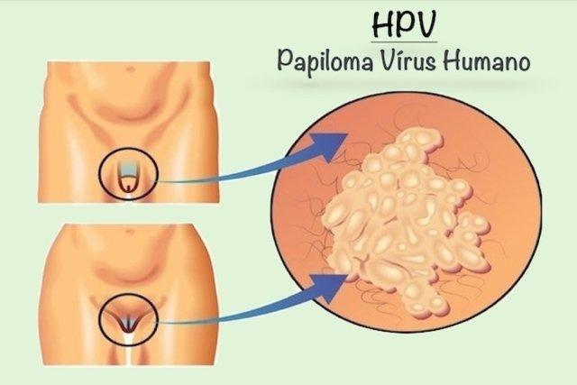 hpv genital feminina sintomas
