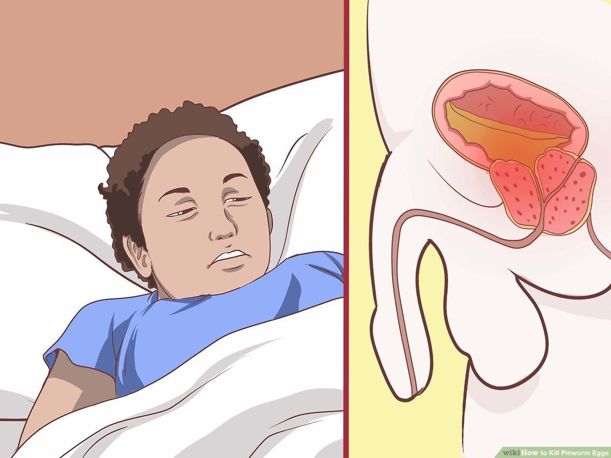 simptomele de difibobotriază
