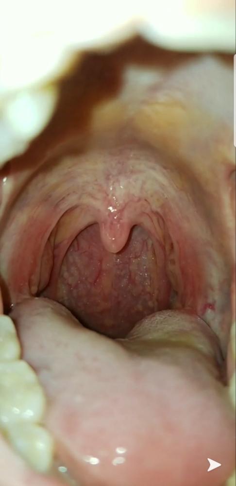 hpv papilloma in throat human papillomavirus rash description