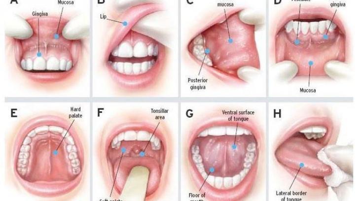glandele salivare din taiwan
