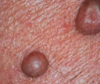 cancer de piele durata de viata cum să bei pastile de helmint