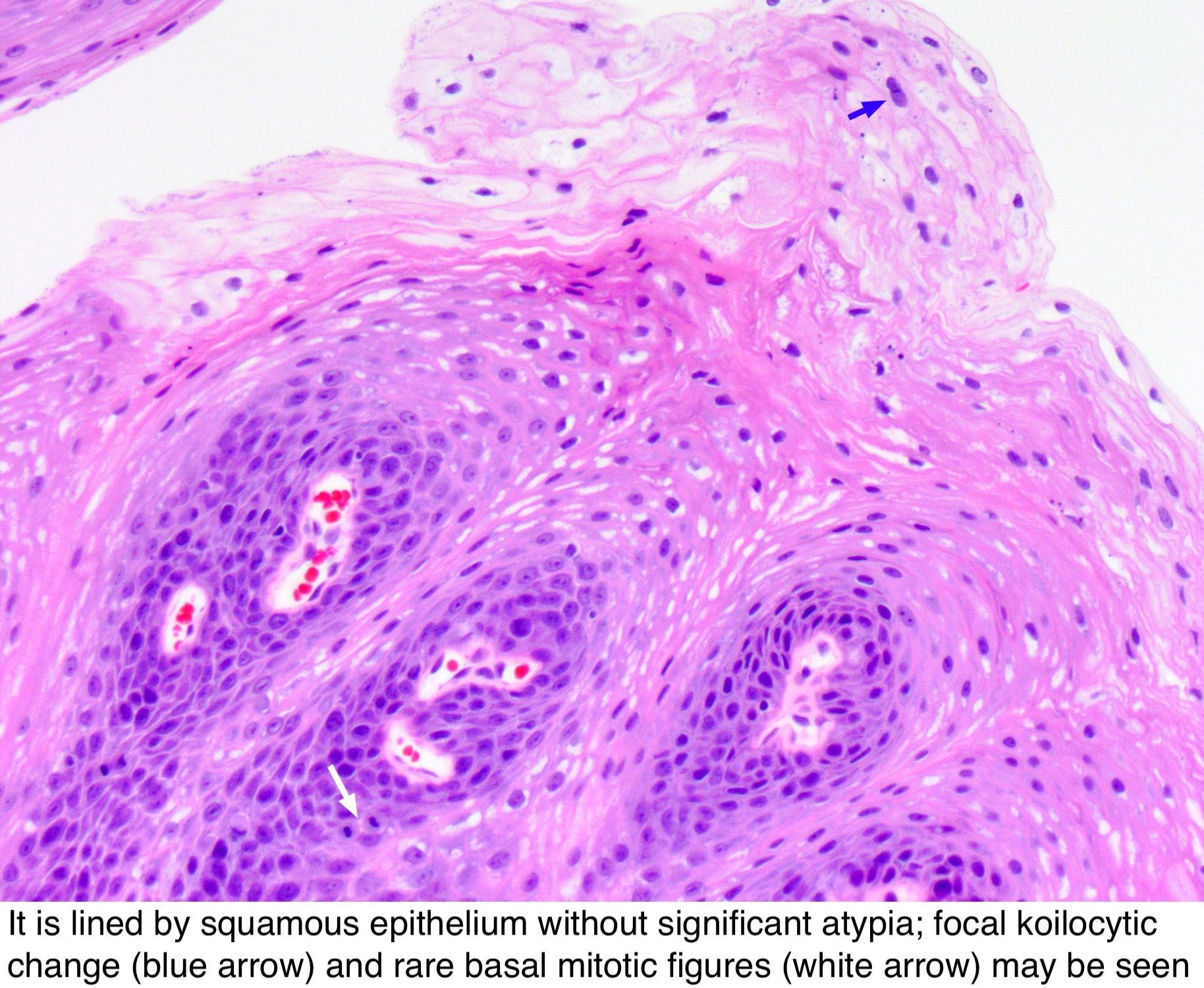inverted papilloma exophytic paraziți și vectori manager editorial