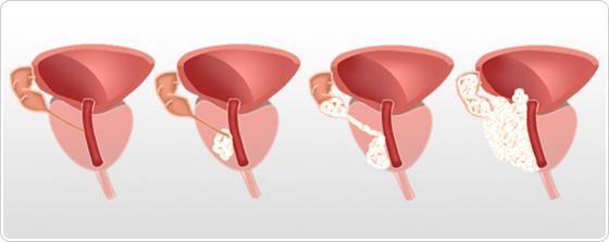 cancer de prostata nivel 6 pentru a curăța corpul viermilor