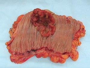 tumoră malignă de migdale genital hpv nedir
