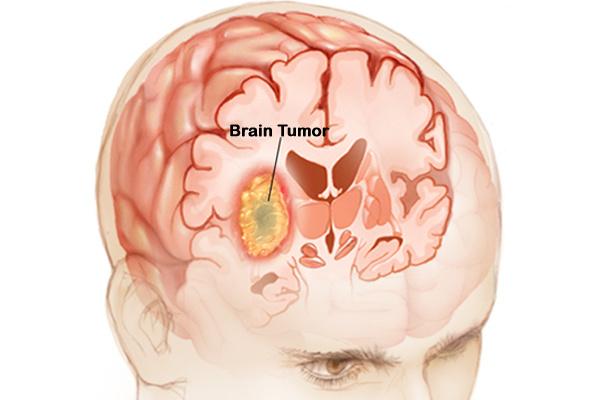 cancer malign creier)