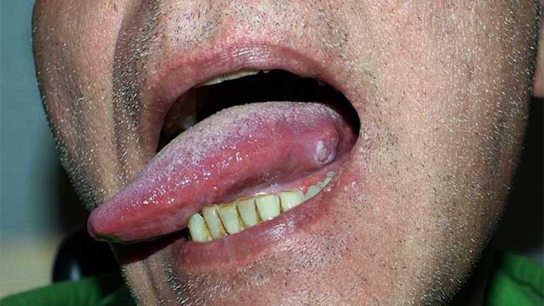 simptome viermisori adulti human papillomavirus infection high risk