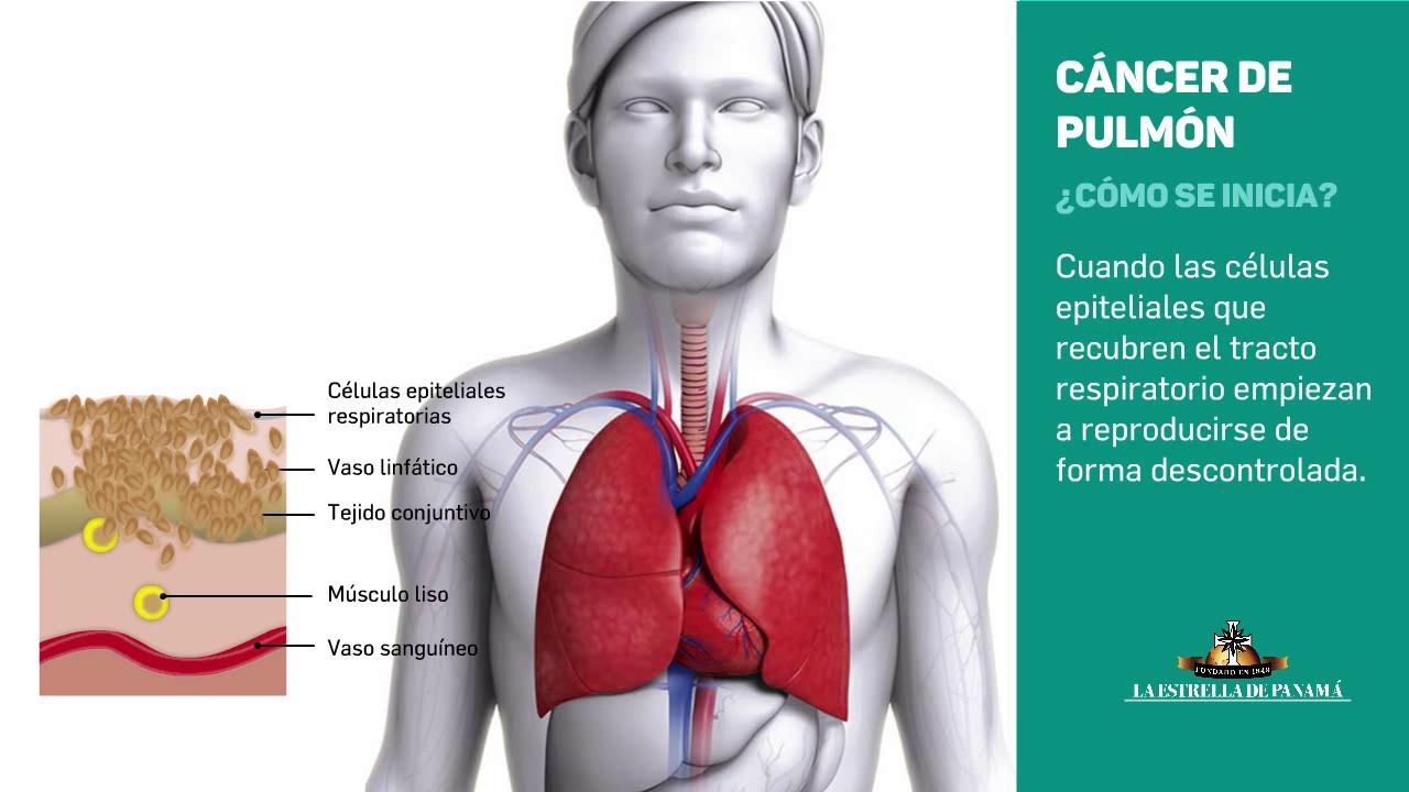 Cancerul pulmonar: cel mai mortal tip de cancer din lume