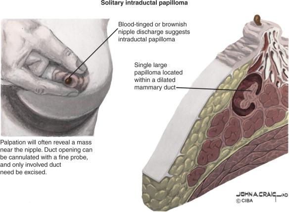 duct papilloma discharge treating vestibular papillomatosis