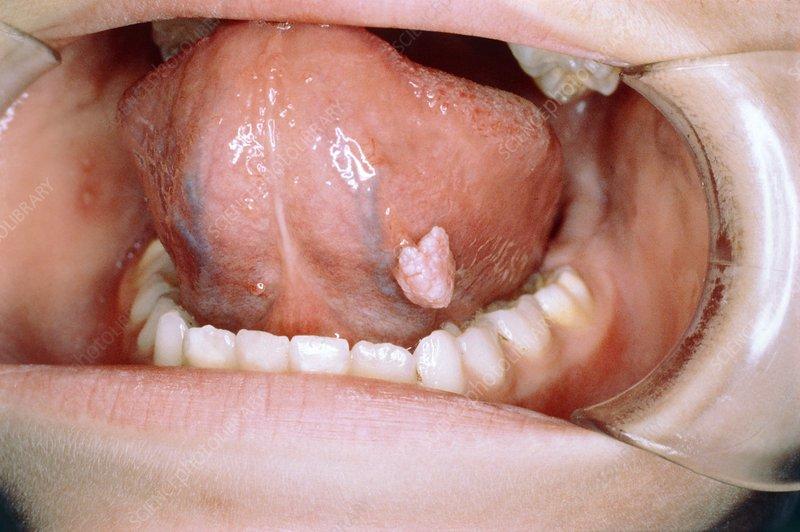 Removing papilloma from tongue