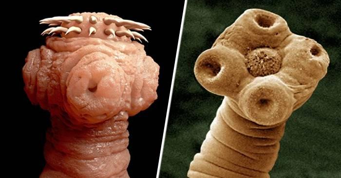 scoate viermii de la o persoană sarcina cu viermi și tratamentul viermilor