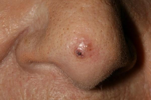 squamous papilloma bronchus preparate de tenă pentru oameni