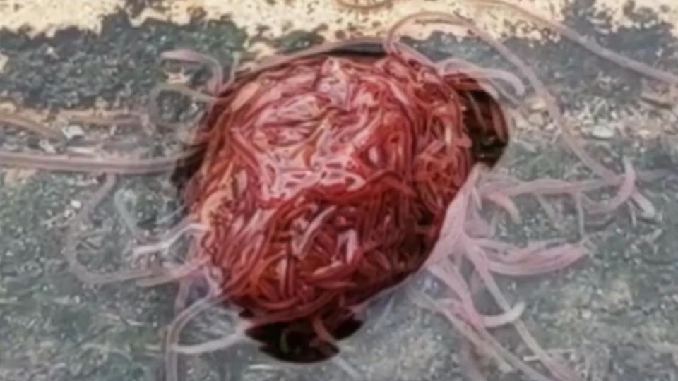 cancer jaundice abdominal pain ellenele vierme