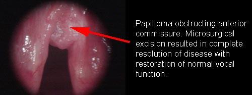 Respiratory papillomatosis in toddler