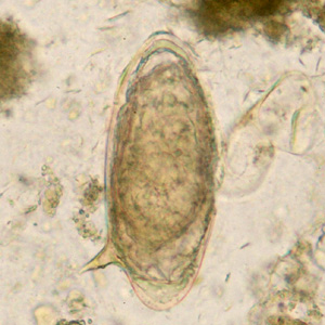 schistosomiasis eggs in stool