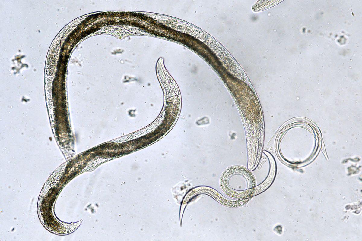 cum să scapi de paraziți de viermi laryngeal papillomatosis pathogenesis