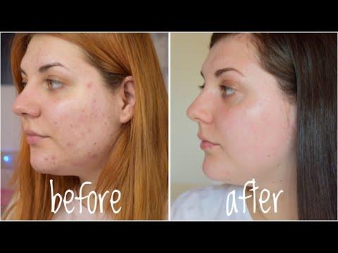 detoxifiere pentru acnee