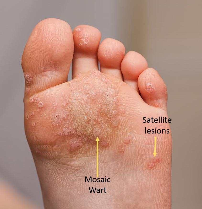 Wart on foot very painful - Papillomavirus in sarcina