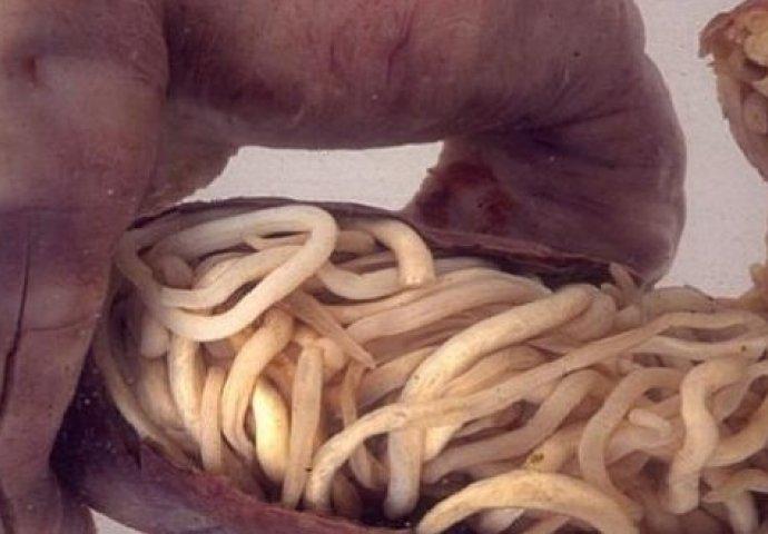 paraziti kod djece simptomi hpv causes symptoms and treatments