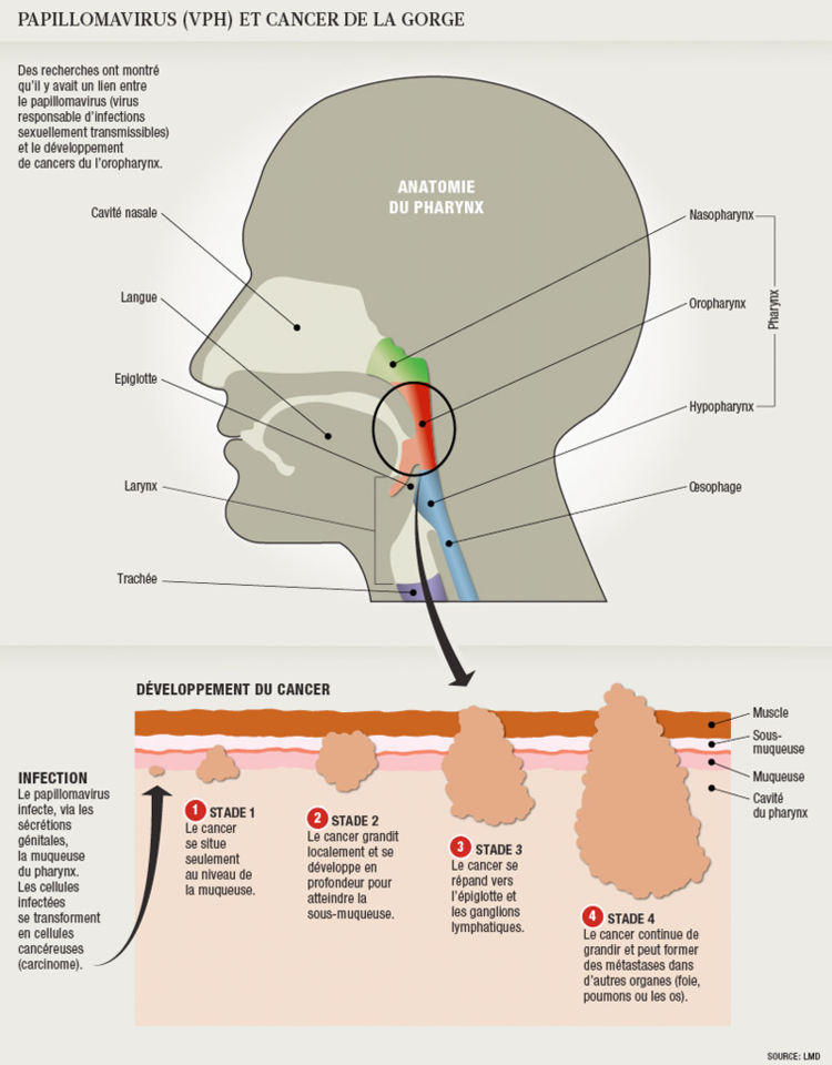 papillomavirus chez l homme cancer gorge