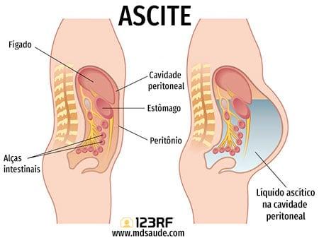 cancer cavidade abdominal