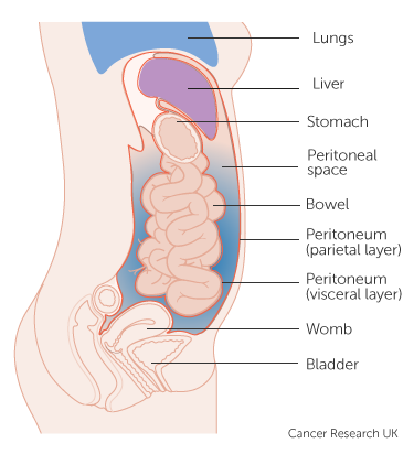 cancer abdominal lining