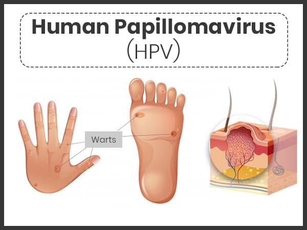 human papilloma virus korunma yollar frecvența este frecventă