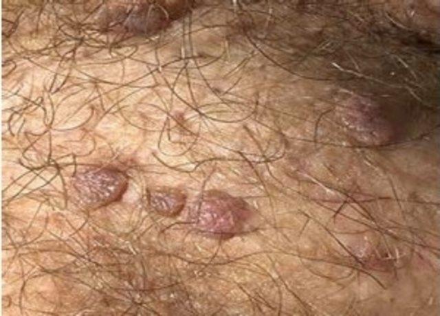 papillomavirus n dir familial cancer definition genetics