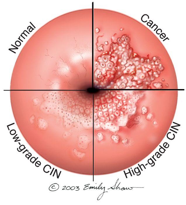 human papillomavirus colon cancer tenioza pe scurt