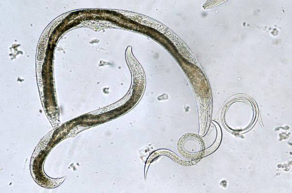 paraziti interni la om)