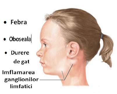 simptome toxoplasmoza