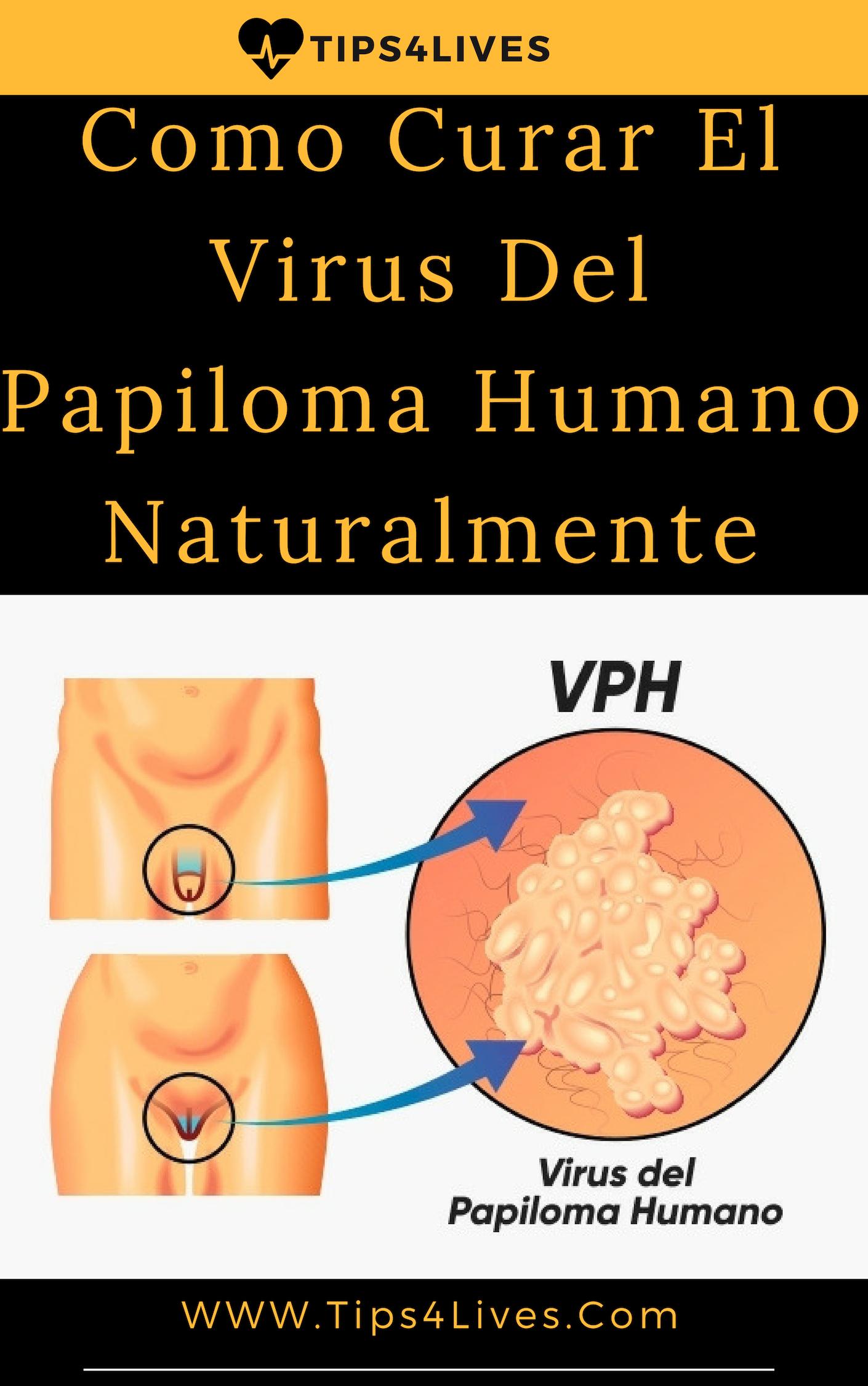 human papilloma as s