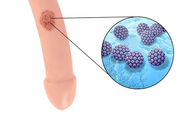 placă în limbă cu giardioză virus papiloma gatos