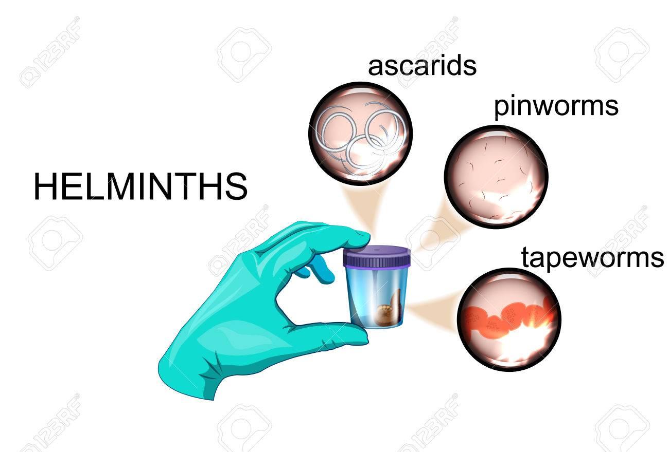 oxiuros analisis tratamentul viermilor și acei la adulți