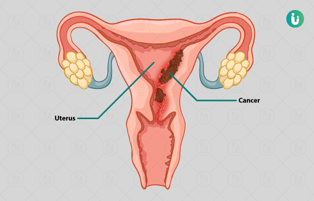 Cancer colorectal femme 30 ans, Squamous papilloma vocal cord icd 10