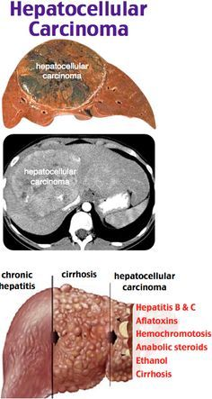 metastatic cancer in colon