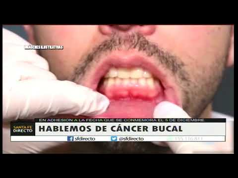 cancer bucal historia