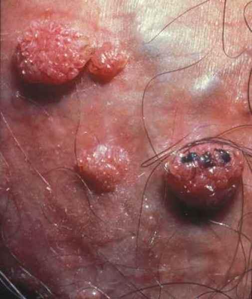 papillomavirus bouton vulve