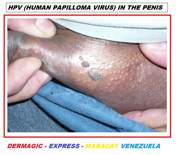 invertált papilloma vírus vérszegénység 3. trimeszter terhesség