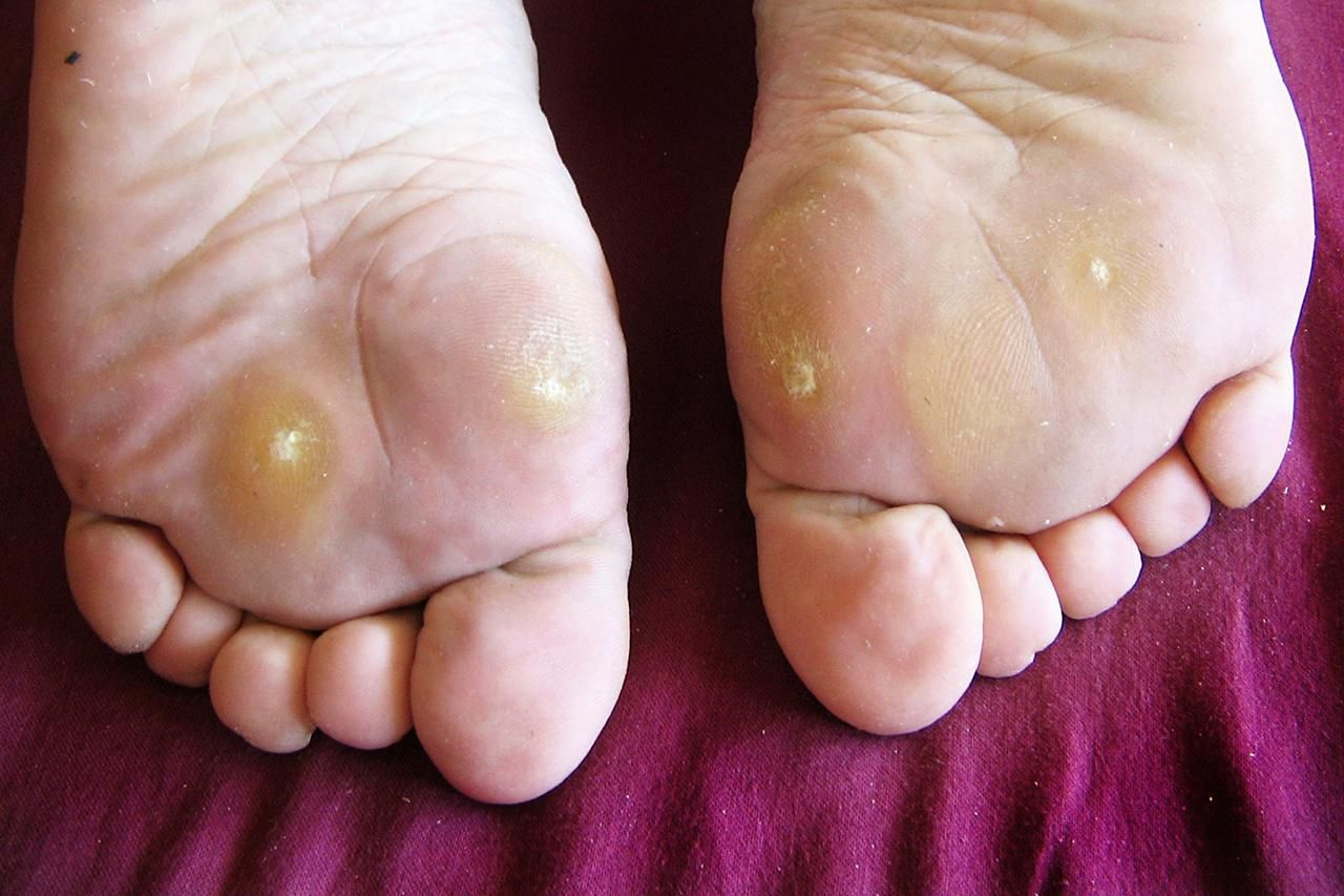 wart on foot with hole in it