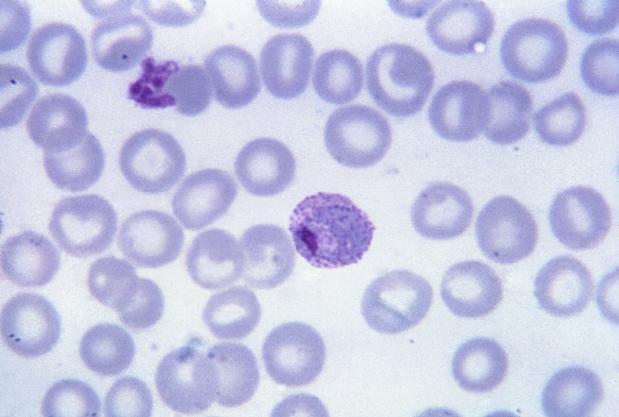 parazit plasmodiu malarie