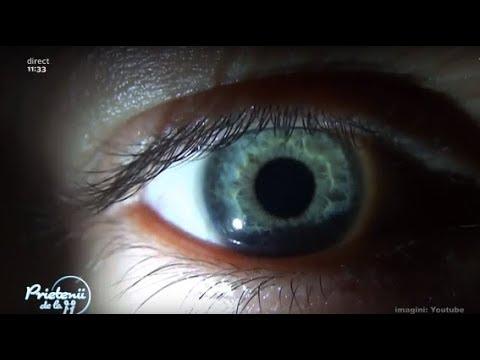 paraziți pe mucoasele ochiului)