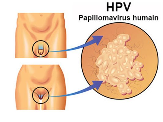 Traitement masculin papillomavirus.